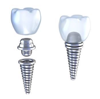 Dental Implants in Beverly Hills