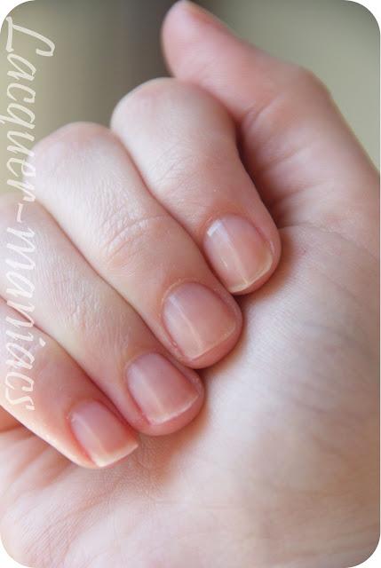 Akcja piękne paznokcie! Czyli lacquer-maniacs poprawia kondycję swoich paznokci
