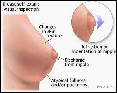 Image Obat Anti Kanker Payudara