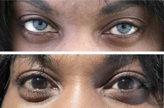 Iris Implant Surgery to Change Eye Colour | All Ping