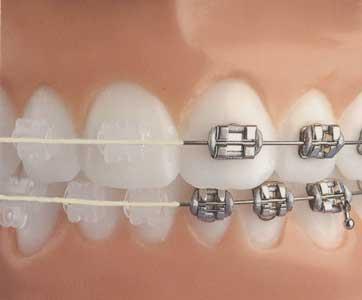 Dsb dental clinic smile youve got options traditional straightwire braces ceramic brackets solutioingenieria Choice Image