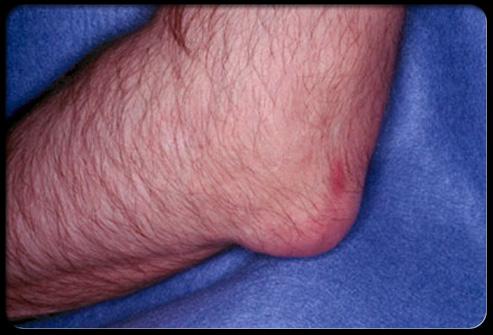 symptome crise de goutte coude