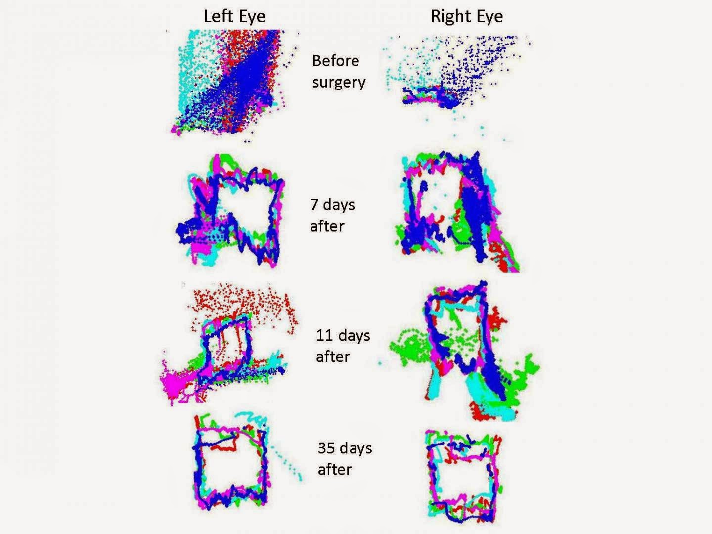A veteran with a small skull fracture and bleeding on the surface of his brain had eye movements that were most intensely affected prior to surgery for repair (day 0). Vertical movements were decreased relative to horizontal movement. As the patient recovered over the next several weeks the eye movements gradually returned to near normal (day 35).