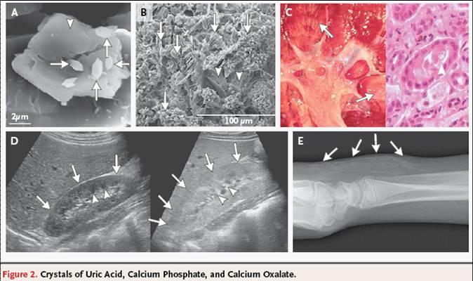 Tumor Lysis Syndrome. บทความเรื่องTumor lysis