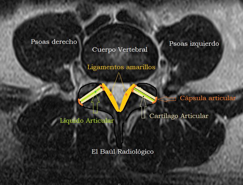 El Baúl Radiológico: QUISTES SINOVIALES YUXTAFACETARIOS LUMBARES, EN ...