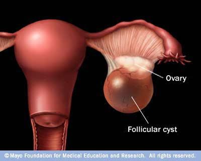 premium beautiful corset membantu mencegah kanser payudara, rahim dan otak dan cyst