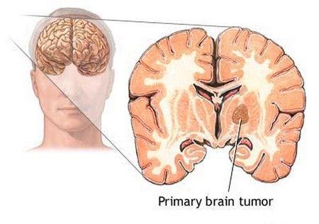 penyakit kanker atau tumor otak