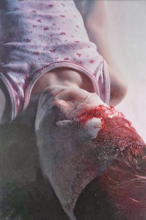 Gottfried Helnwein paintings hyper-realistic little girls injured innocence violence Los Caprichos - Bandages and blood