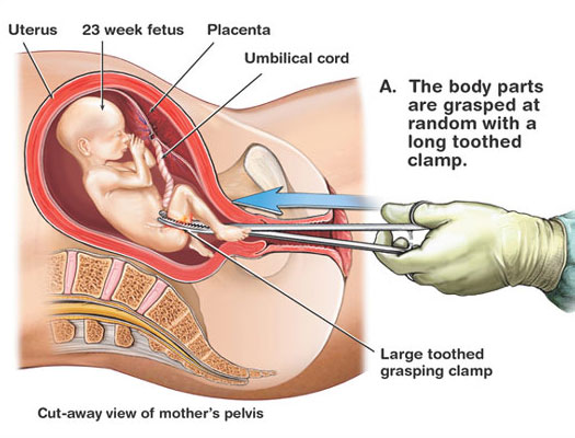 Abortion procedure