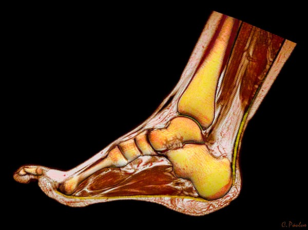 3-D Color HD MRI Scan of the Foot and Ankle