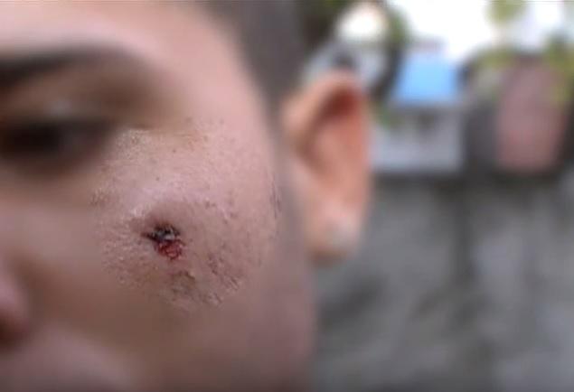 http://www.blogdofelipeandrade.com.br/2015/09/passou-na-tv-estudante-escapa-da-morte.html
