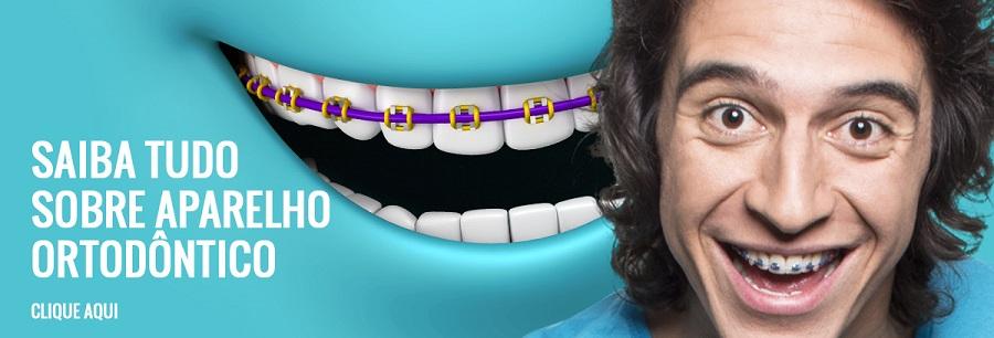 Saiba Tudo Sobre Aparelho Ortodontico