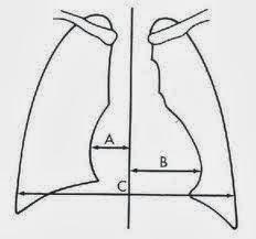 Imagen Rx del corazón