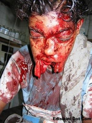 terjah blog Akibat Mabuk Makan Mercun Sampai Terburai Mulut