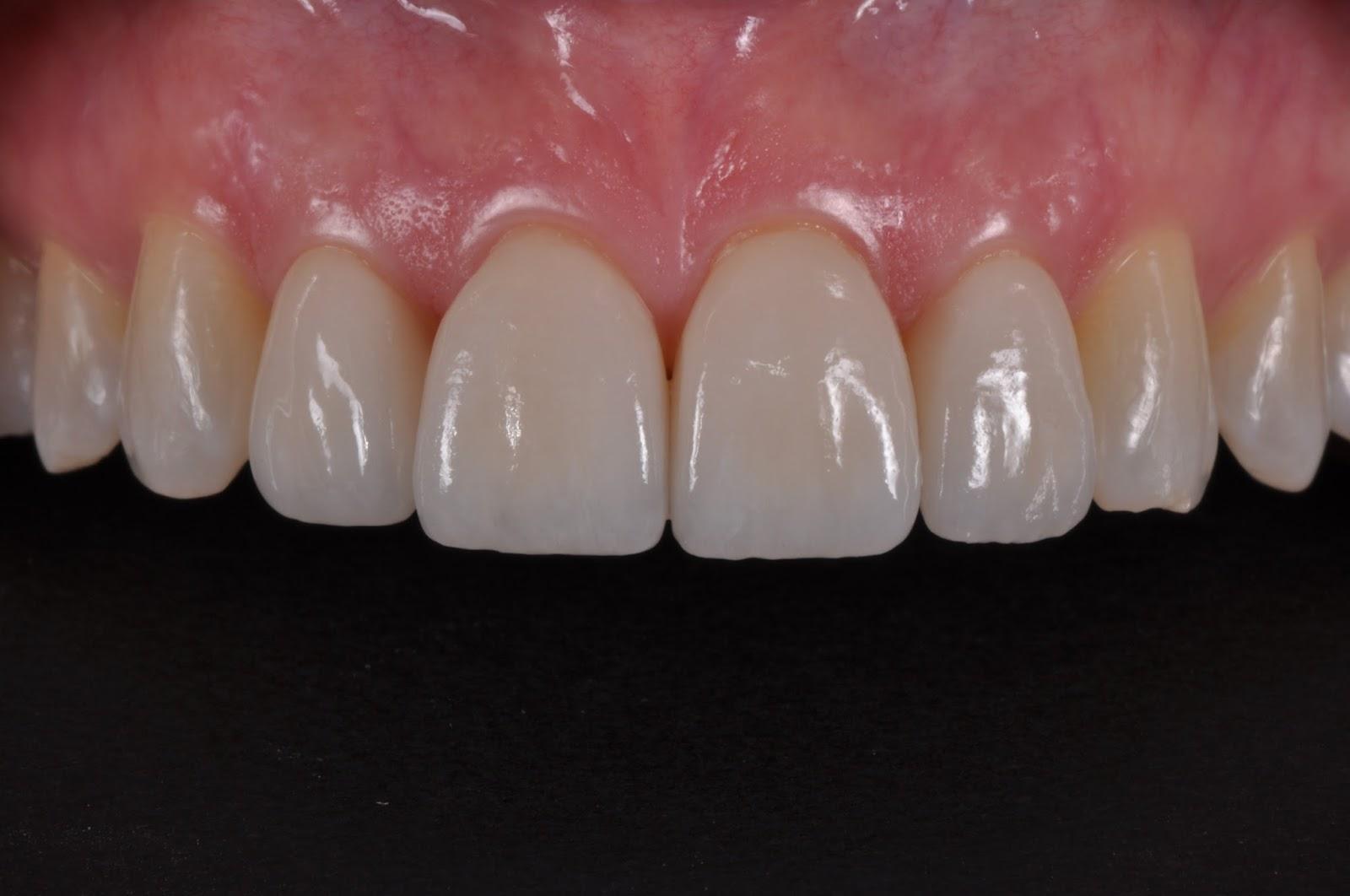Dental Ring Flash