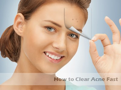 how to clear acne fast