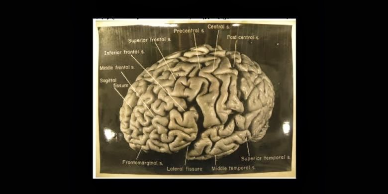 Inilah Rupa Otak Einstein