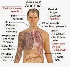 اعراض فقر الدم الاولية