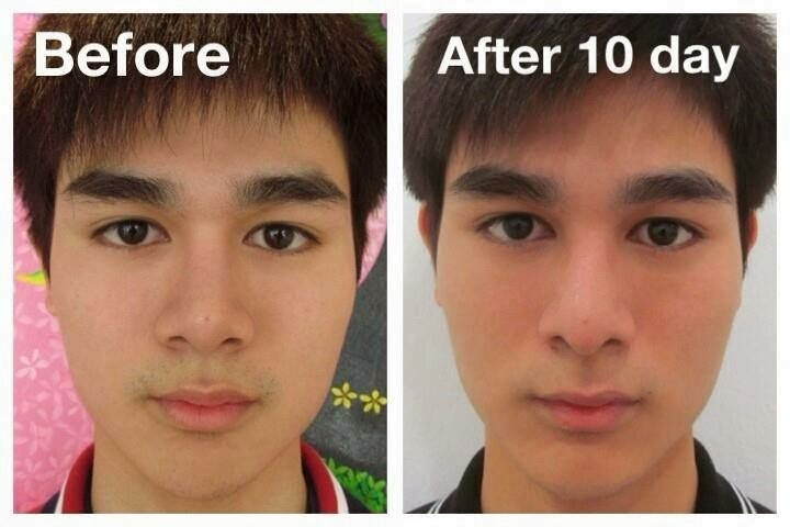 Male reassignment surgery before and after