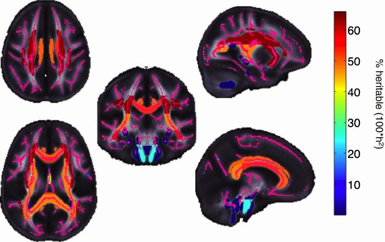 Neuroscientists Begin To Crack the Brain's Genetic Code