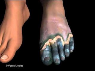 Cara Mengatasi Gangren Pada Penderita Diabetes