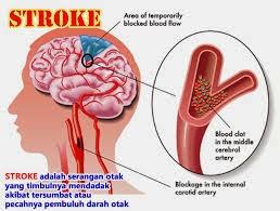 Gejala Penyakit Stroke Dan Pengobatannya