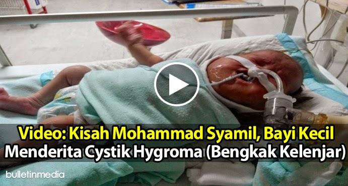 VIDEO Kisah Mohammad Syamil Bayi Kecil Menderita Cystik Hygroma Bengkak Kelenjar