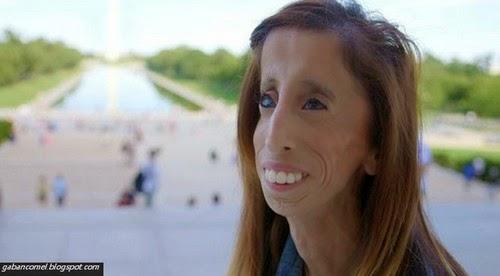 Lizzie Velasquez Wanita Paling Hodoh di Dunia