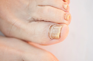 Toenails with Toenail Fungus Treatment Needed