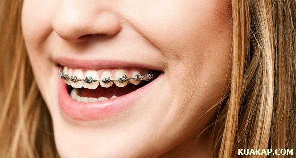Tips & Trik Cara Membersihkan Gigi Behel Gigi Berkawat Yang Benar Dan Baik