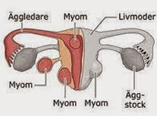 Penyakit Miom