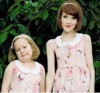 mãe  com anorexia  pesa menos que a filha