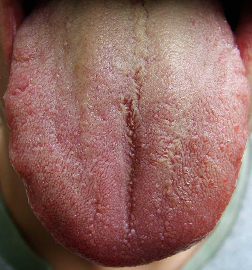 Tongue dark brown coating