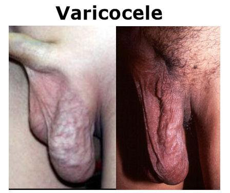 [Imagem: varicocele.jpg]