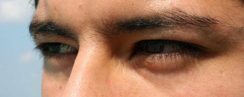 Pele ao Redor dos Olhos