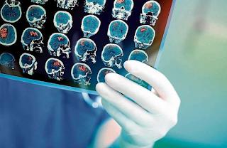 Exame de sangue simples pode detectar Alzheimer