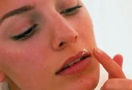 http://tinyurl.com/herpes-cura-natural-efectiva