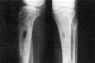 Todo sobre la osteomelitis