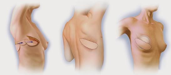 La reconstruction mammaire par lambeau de grand dorsal
