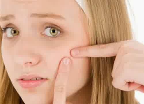 Strawberry Mask to Overcome Acne