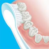 Cara Sikat Gigi Dengan Benar