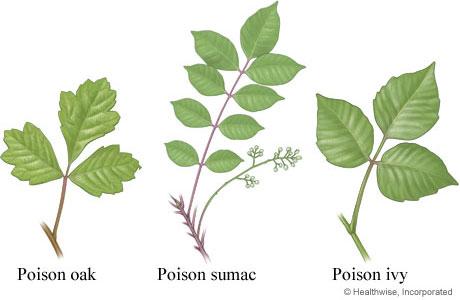 Courtesy of health comPoison Oak Rash Vs Poison Ivy