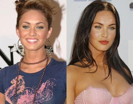 All Cosmetic Options   Your Guide to all cosmetic and beauty    Celebrity Before And After