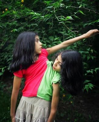 Carmen dan lupita kembar siam dempet dengan dua kepala