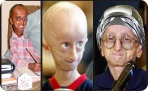 progeria