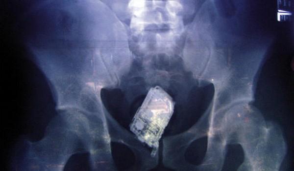 Radiografías extrañas