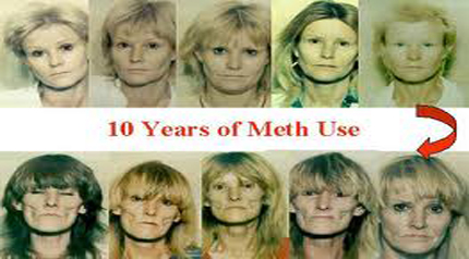 Recovery Corner: Effects and Signs of Methamphetamine Use