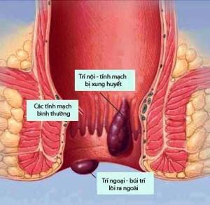 Bệnh trĩ nội - Kiến thức tổng quan