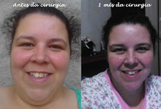 suziane burguez proença obesidade dieta pós cirurgia gastroplastia foto