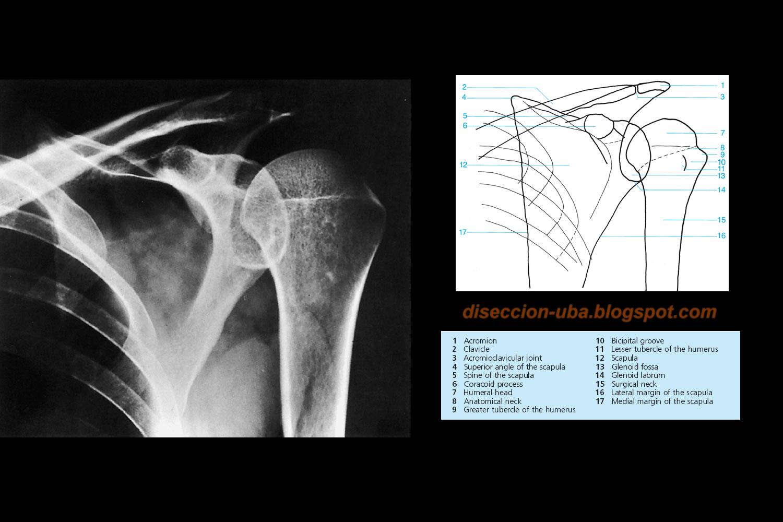 rx: Rx hombro en posición anatómica